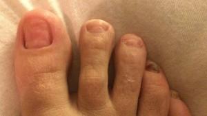 oncologische voet